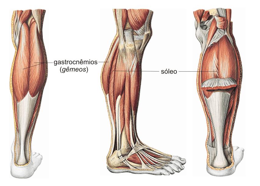 definição de ruptura do músculo gastrocnêmio