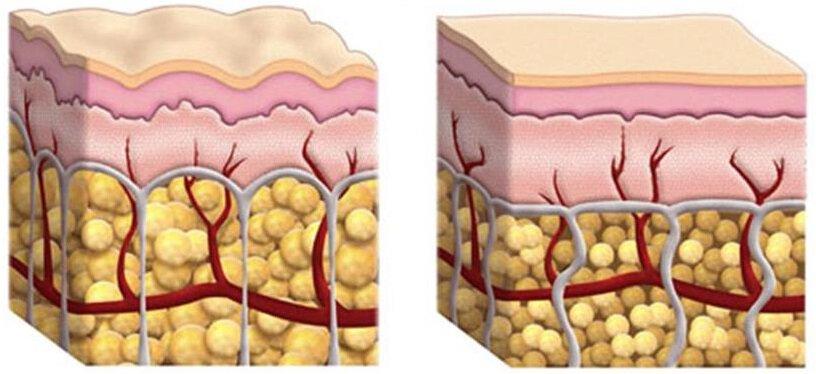 celulite-gordura-estocada