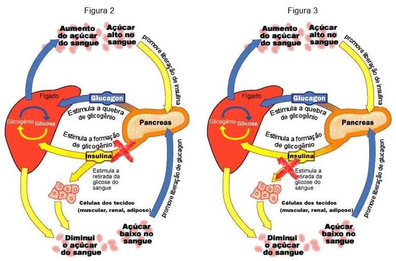 síntomas de diabetes at19