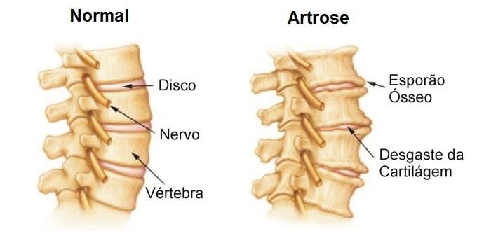 Dores na Cervical Artrose