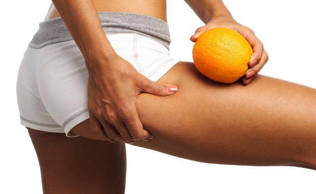 Fatores que ajudam a Prevenir e Tratar as Celulites