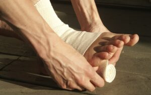 Lesão no Tornozelo: sintomas, cuidados, como evitar e tratamento