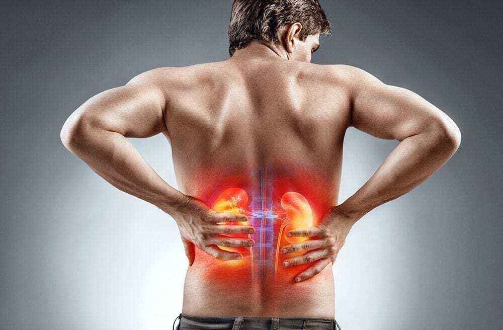 Quem tem pedra nos rins pode tomar creatina?