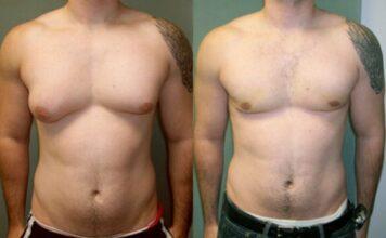 Antes e Depois Ginecomastia