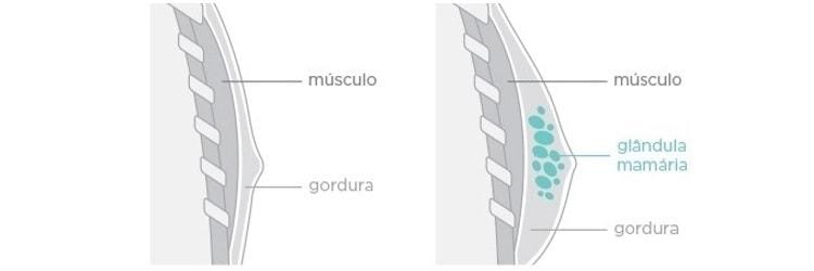 Como trarar a Ginecomastia