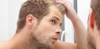 Creatina provoca queda de cabelo? O suplemento pode causar calvície?
