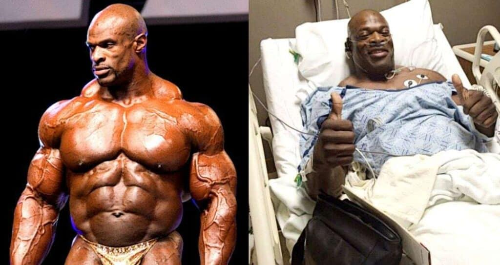 Fisiculturista Ronnie Coleman Hospital
